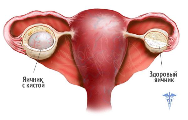 Пробиотики в гинекологии Гиппократ