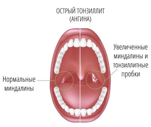 тонзиллит фото горла лечение